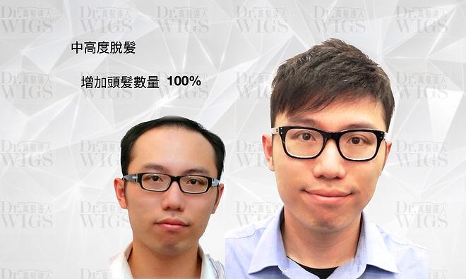 織髮增加100%