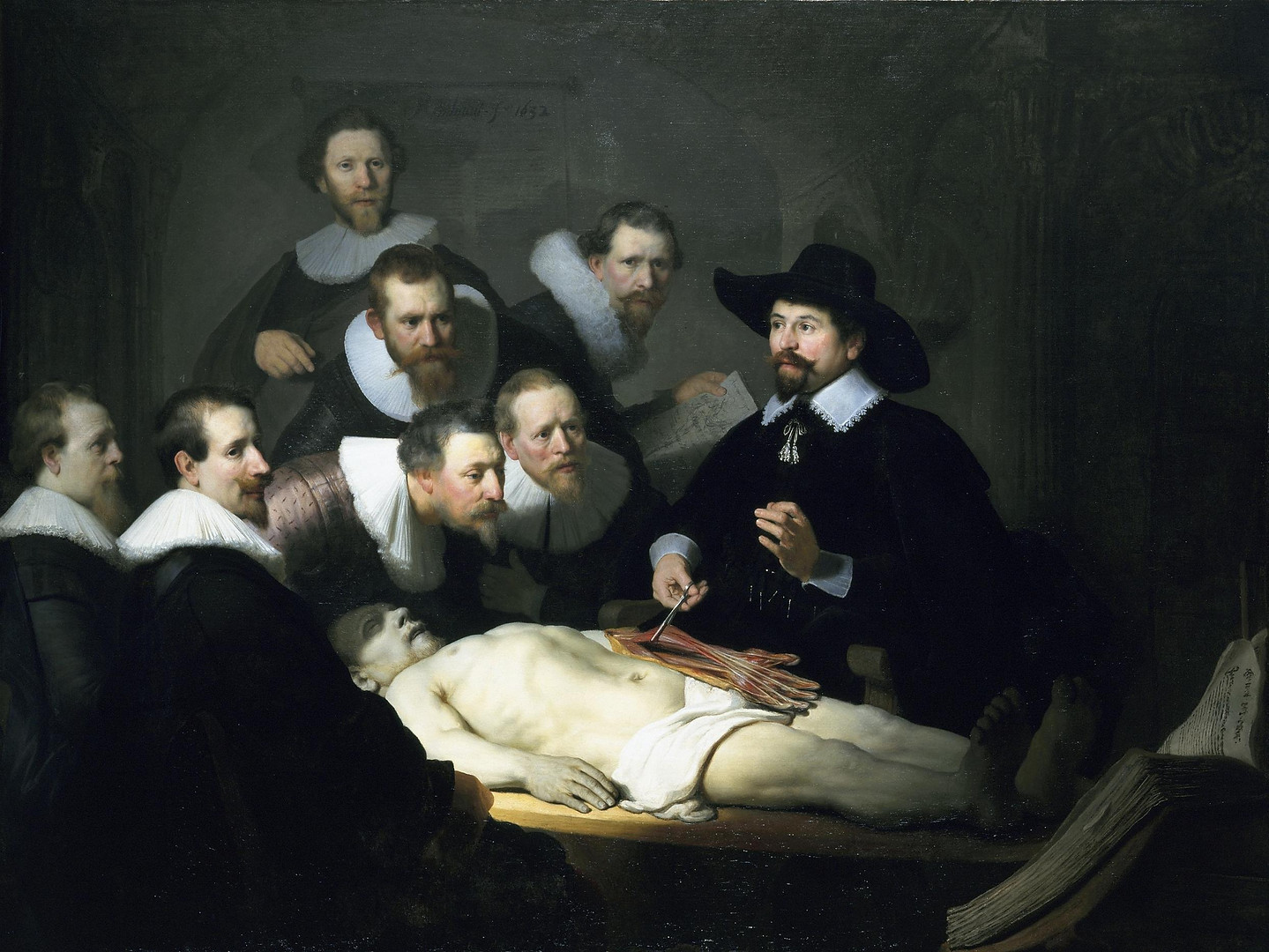 In this popular group portrait by Rembrandt van Rijn (1606-1669), we see the Dutch surgeon and mayor of Amsterdam, Nicolaes Tulp's demonstration of a corpse's dissected forearm. Because the surgeon's guild commissioned a portrait every five to ten years, some of the spectators depicted are various doctors who paid to be included in the painting.  Earlier in the day, Aris Kindt, the corpse, was hung and had his arm cut off as punishment for thievery. Medical specialists claim inconsistencies in the muscles and tendons, indicating that the artist may have copied a standard illustration from an anatomical textbook. Alluding to this interpretation is the book found in the right corner, likely the 1543 De humani corporis fabrica (Fabric of the Human Body) by Andreas Vesalius. Due to the subjects' performative gesture and the artist's mistake, we are able to look past the doctors' supposed mise-en-scene, and notice Aris Kidnt.