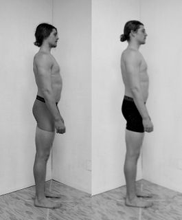 Rolfing 10 Series Before and After