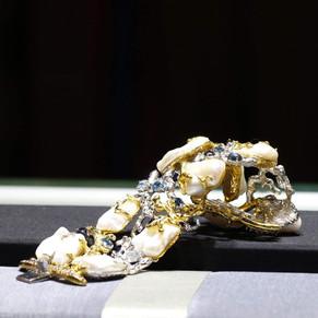 Andy's bracelet
