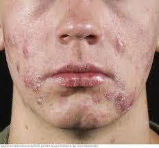 Skin Health During COVID-19