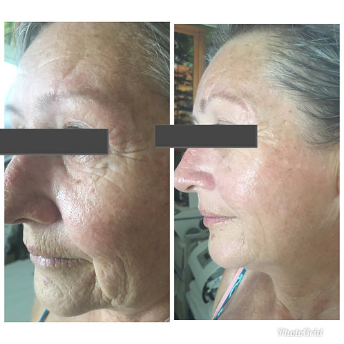 Non Surgical Face Lift 20% Off
