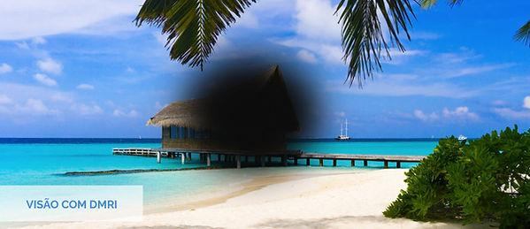 visão_com_dmri_.jpg