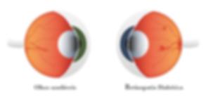 retinopatia-diabetica-um-risco-silencios