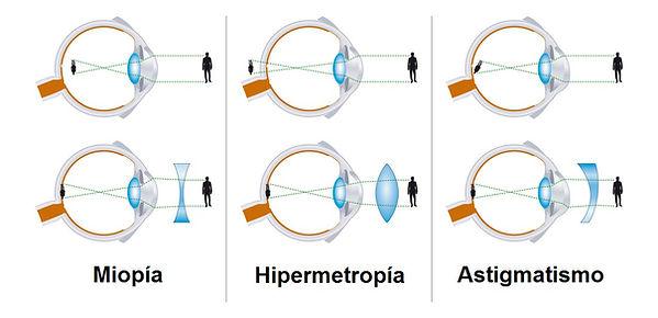miopia-hipermetropia-astigmatismo.jpg