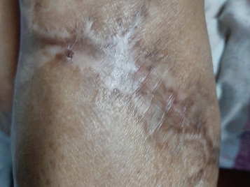 ML, 63/F, diabetic, with a large, infected, non-healing ulcer on her proximal leg.