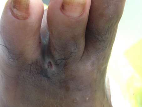 DPJ, 38/M, diabetic, s/p amputation of 1st and 2nd toes, with a non-healing, infected post-op wound.