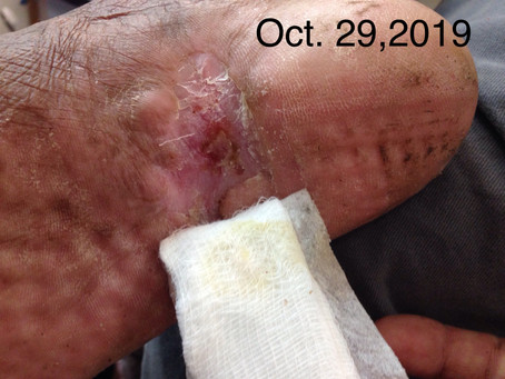 AD, 68/M, diabetic, with a large, infected, non-healing foot ulcer.