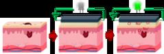 Hydrogel 6.png