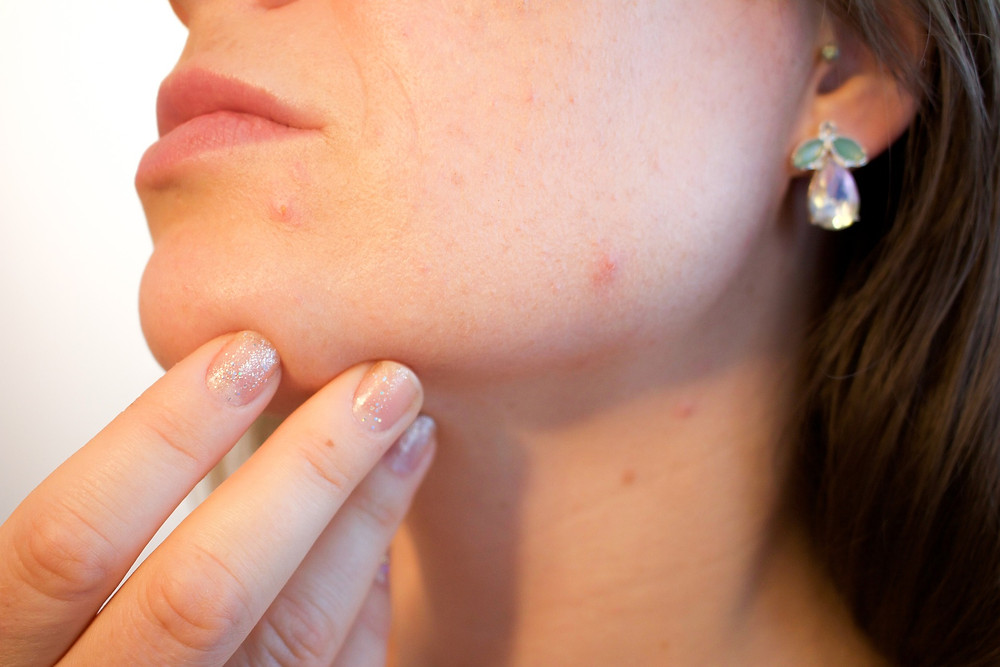 a woman touching her chin showing acne