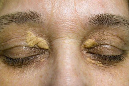 xanthelasma treatment Toowoomba