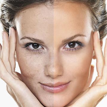 laser-hyperpigmentation-treatment.jpg