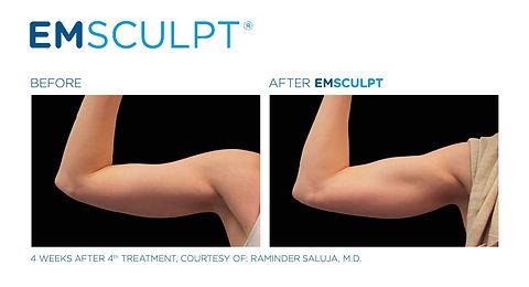 EMsculpt (1).jpg
