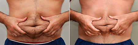Coolsculpting-mens tummy.png