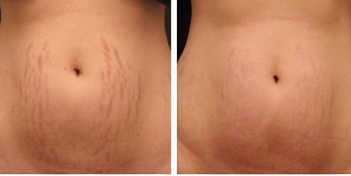 before-and-after-stretch-marks.png