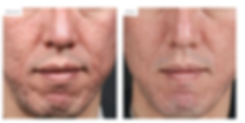 Microneedling-with-PRP2.png