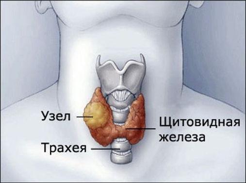 Узел в щитовидной железе.