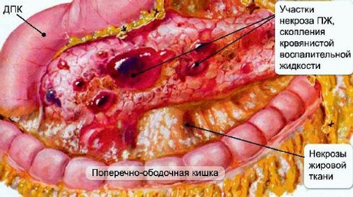 Картина острого панкреатита с участками некроза в поджелудочной железе (панкреонекроз).