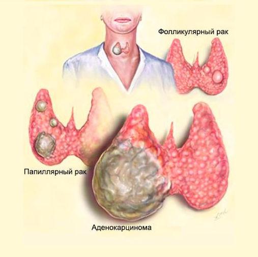 Рак щитовидной железы.