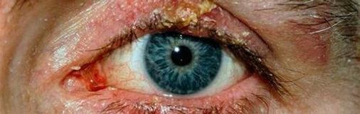 Блефарит глаза.