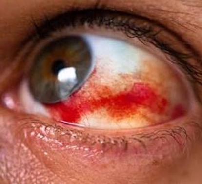 Субконъюктивальное кровоизлияние