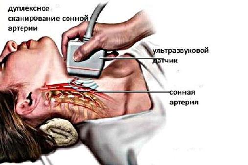 Проведение дуплексного сканирования брахиоцефальных артерий.