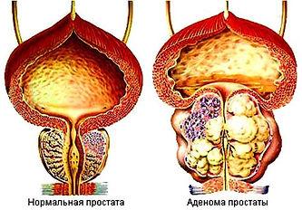 Аденома предстательной железы.