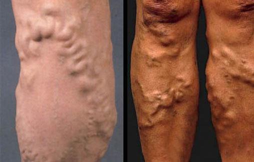 Варикозная болезнь ног.