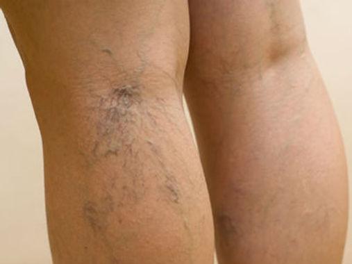 Сосудистая сеточка на ногах – показание к УЗИ нижних конечностей