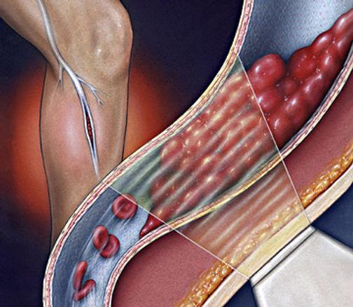Причина возникновения тромбоза.