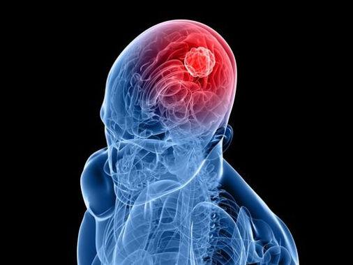 -новообразования в головном мозге и других отделов нервной системы