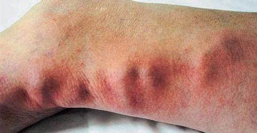 Симптомы и проявление тромбофлебита на ногах.