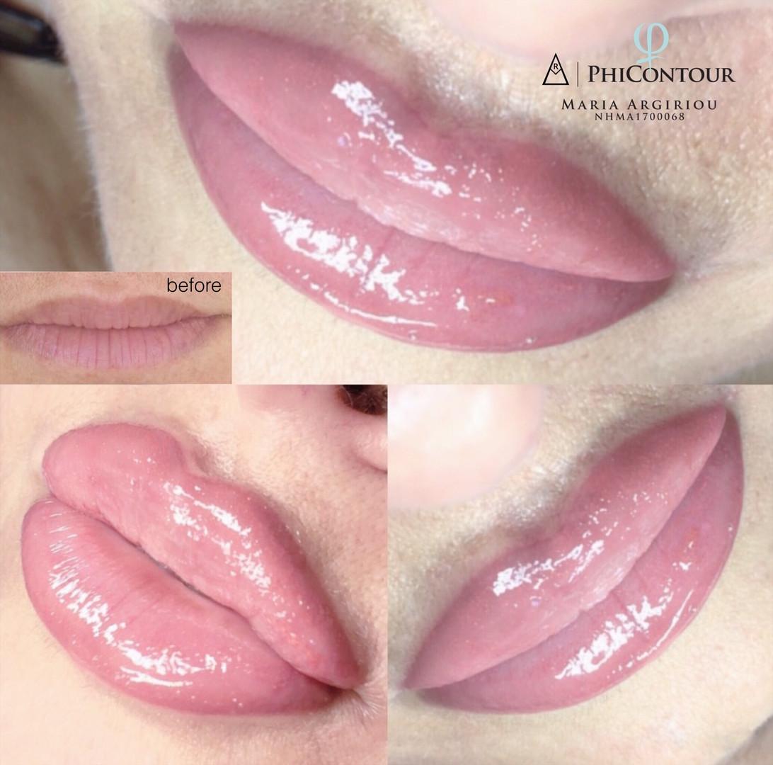 Phicontour Lippen
