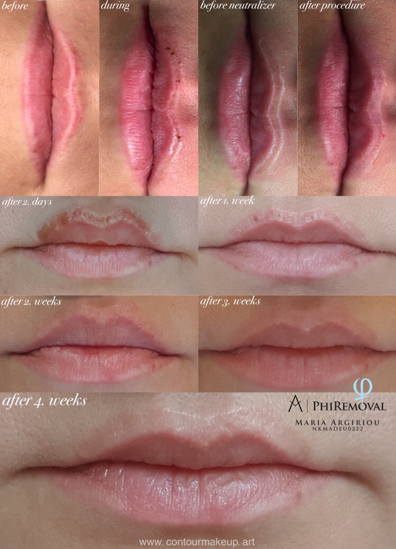 PHIREMOVAL LIPPE