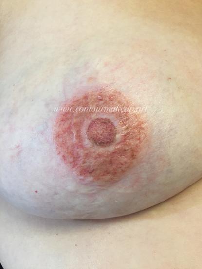 Brust 6 nachher.PNG