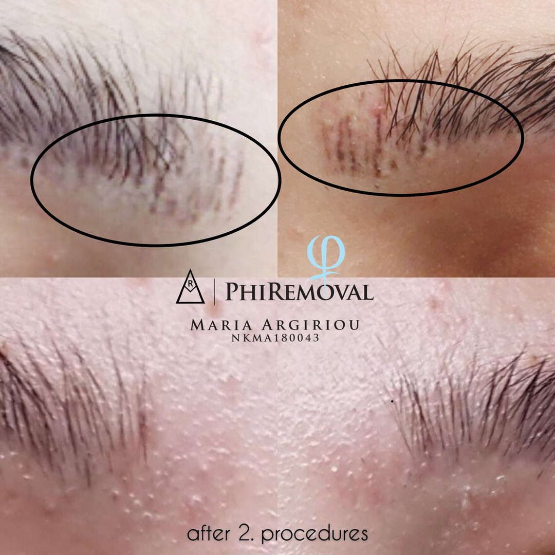 Phiremoval
