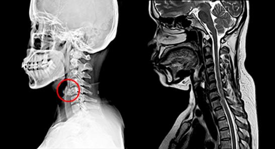 Skelett verdeutlicht Schmerzursachen im Halsbereich