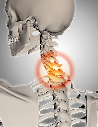 Nackenschmerzen durch Halswirbel