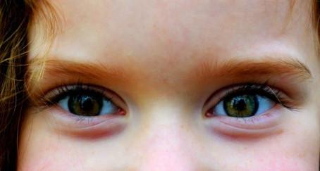 Glaucoma: Mitos e verdades