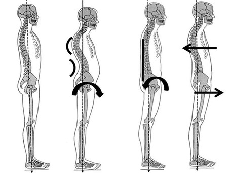 The Importance of Postural Analysis