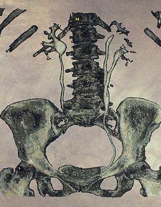 urinary II.jpg