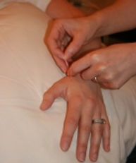 IMG_1691_138x165_acupuncture2.jpg