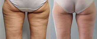 celluliteLEGS (1).jpg
