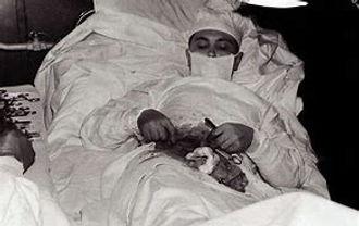 Dr.-Leonid-Rogozov-operating-himself-to-