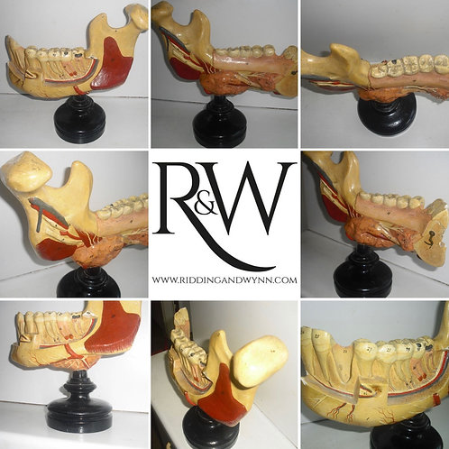 Somso  - Anatomical Model of the Left Lower Jaw