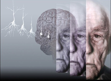 Would you know the signs of early Alzheimers' Disease?