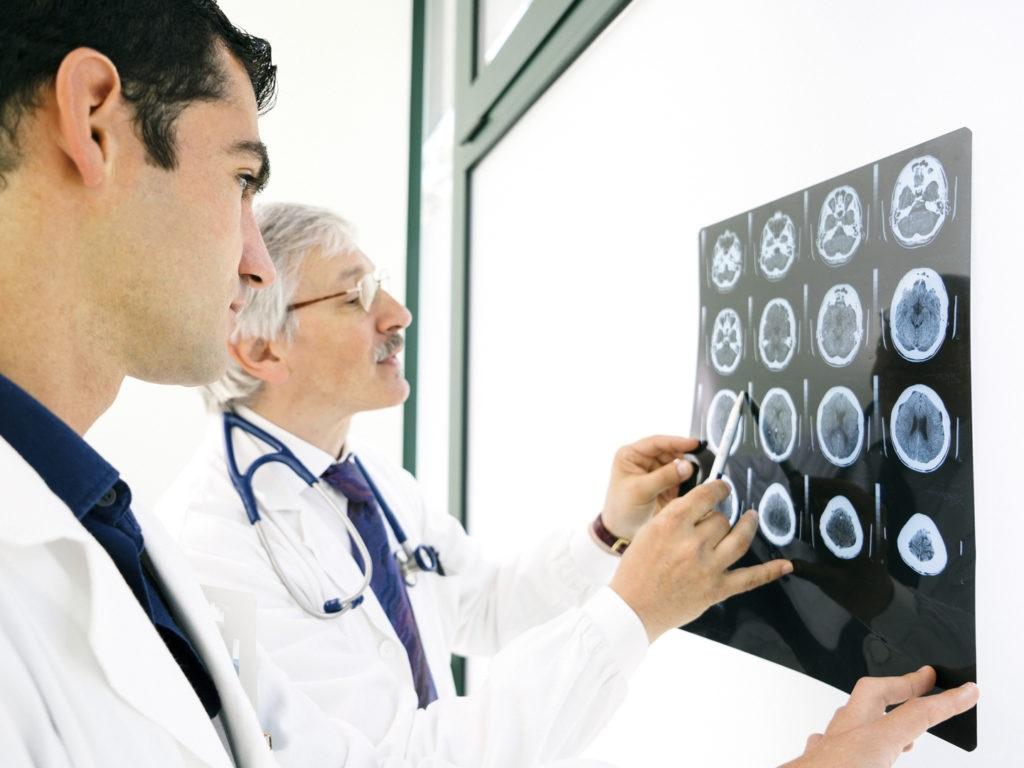 health-wellness_body-mind-spirit_disease-disorders_alzheimers-disease_2714x1811_65222797-1024x768