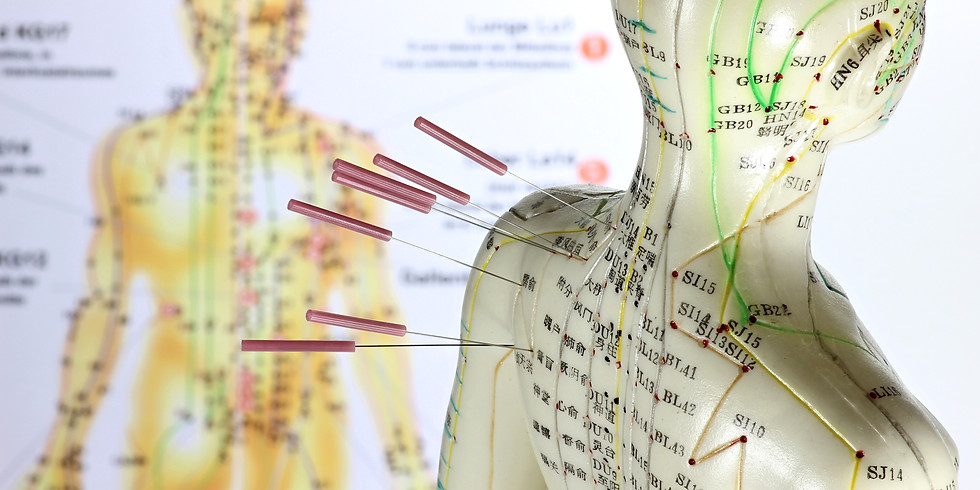 Acupuncture Can Change Your Life
