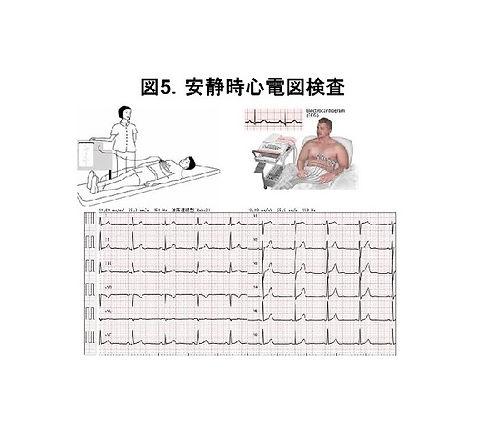 心電図(図5).jpg