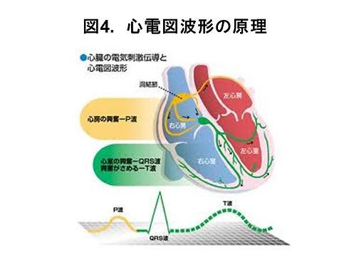 心電図(図4).jpg